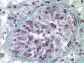 Tubule gonadique d'huître creuse Crassostrea gigas, stade précoce, microscopie photonique.