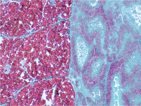 Coupe transversale de gonade et glande digestive de buccin Buccinum undatum femelle (coloration : Trichrome de Prenant Gabe)