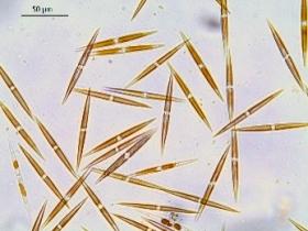 La diatomée Pseudo-nitzschia, responsable d'efflorescences toxiques - Aurore Sauvey